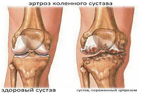 artroz